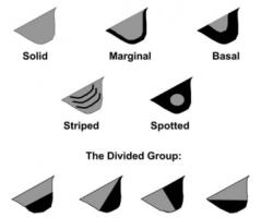 Différents types de fanon gulaire
